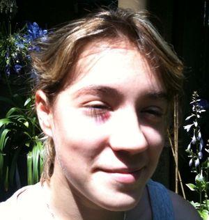 Black-eyed-Remy