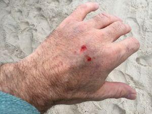 Sea snake bite